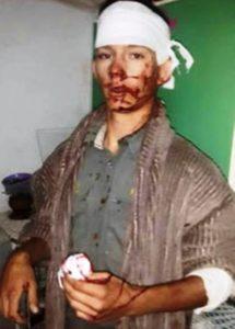 Sean Henry Bates nadat swartes hom met messe aangeval het.